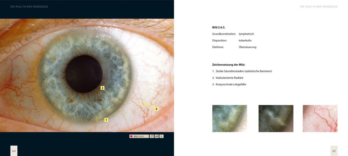 Irisdiagnose Lehrbuch 3: Die Milz in der Iridologie